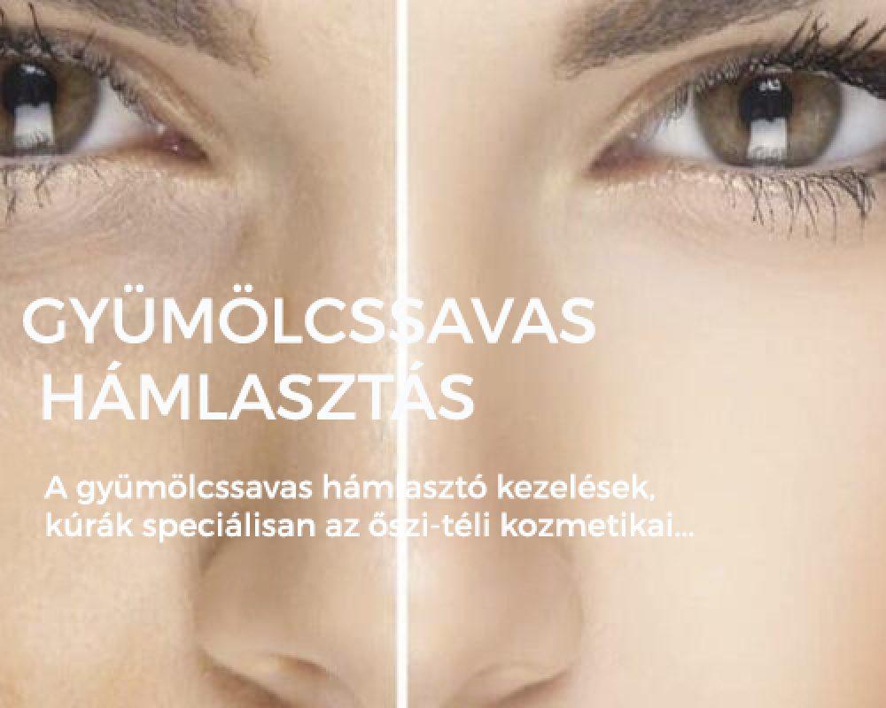 gyumolcssavas-hamlasztas-1220x400 csúszka